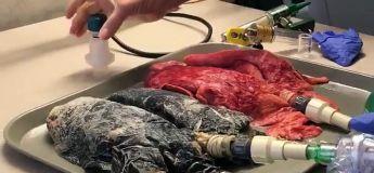 Les poumons d'un fumeur vs poumons d'un non-fumeur #journeemondialesanstabac