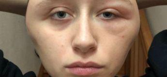 Une jeune femme est entièrement défigurée suite à une allergie à une coloration capillaire
