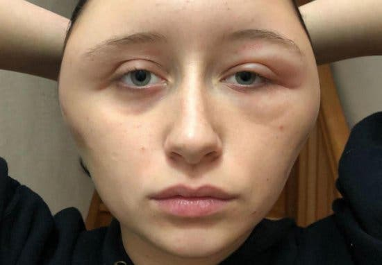 une jeune femme est enti rement d figur e suite une allergie une coloration capillaire. Black Bedroom Furniture Sets. Home Design Ideas