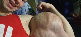 Un « bodybuilder » qui injecte de Synthol a perdu face à un champion russe lors d'un concours de gifle