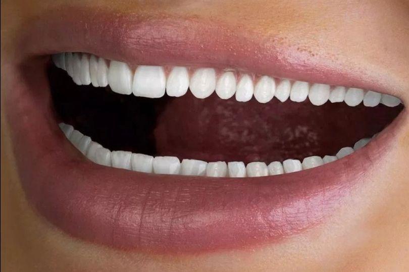 Une entreprise dentaire publie une annonce pour ses services en montrant une femme avec trop de dents