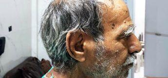 Une « corne du diable » de 10 cm s'est poussée sur la tête d'un Indien