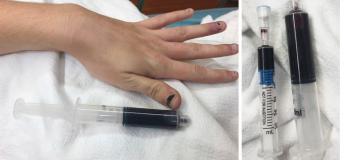 Au Rhode Island, cette femme se précipite aux urgences la peau décolorée et le sang bleu