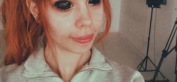 Ce mannequin a voulu se faire tatouer les yeux en noir mais a fini aveugle