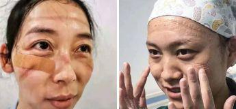 Après des heures de luttes contre le Coronavirus, les masques laissent des traces sur les visages des infirmières