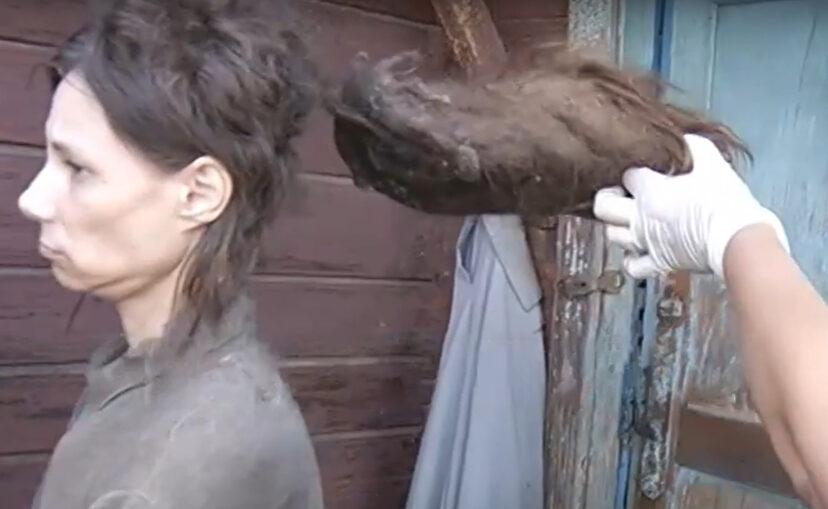 Cette femme a été isolée du reste du monde par sa mère pendant 26 ans et ne s'était pas lavée depuis 2006