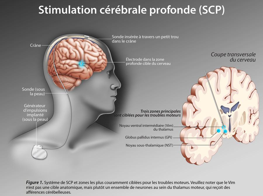 Montrer l'efficacité de la stimulation cérébrale profonde (SCP) pour les patients atteints de maladie de Parkinson
